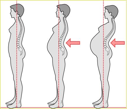 Si puede ser la presión subida de los dolores en la espalda